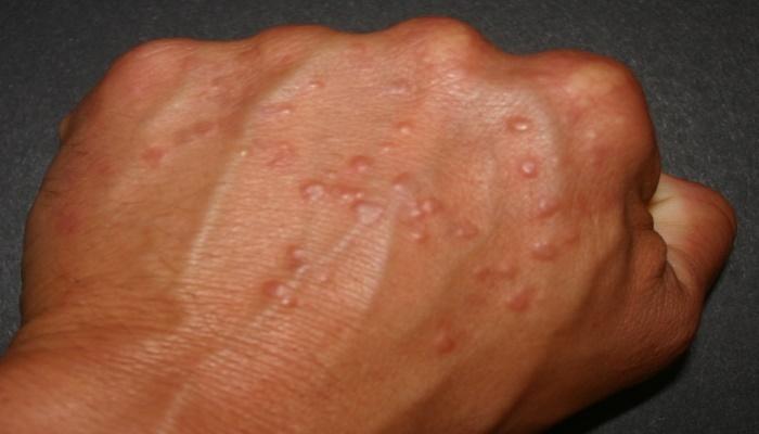 psoriasis symptoms4