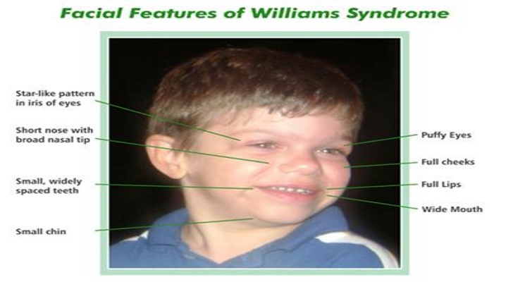 Williams Syndrome Eyes